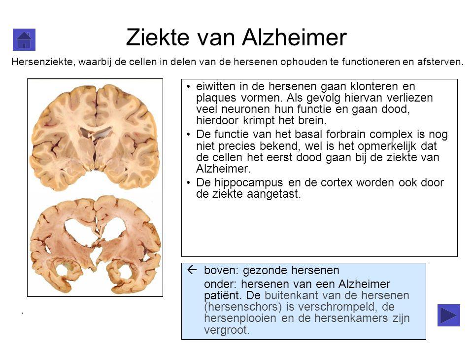 Ziekte van Alzheimer Hersenziekte, waarbij de cellen in delen van de hersenen ophouden te functioneren en afsterven.