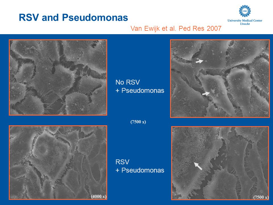 RSV and Pseudomonas Van Ewijk et al. Ped Res 2007 No RSV + Pseudomonas