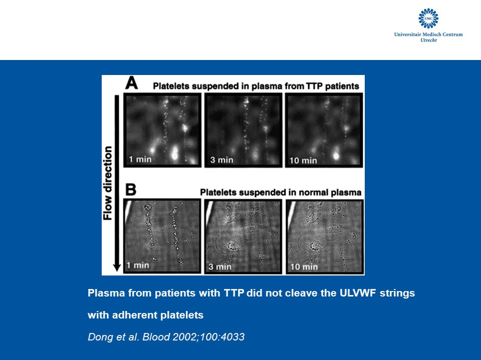 Plasma from patients with TTP did not cleave the ULVWF strings with adherent platelets