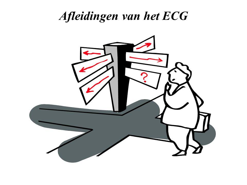 Afleidingen van het ECG