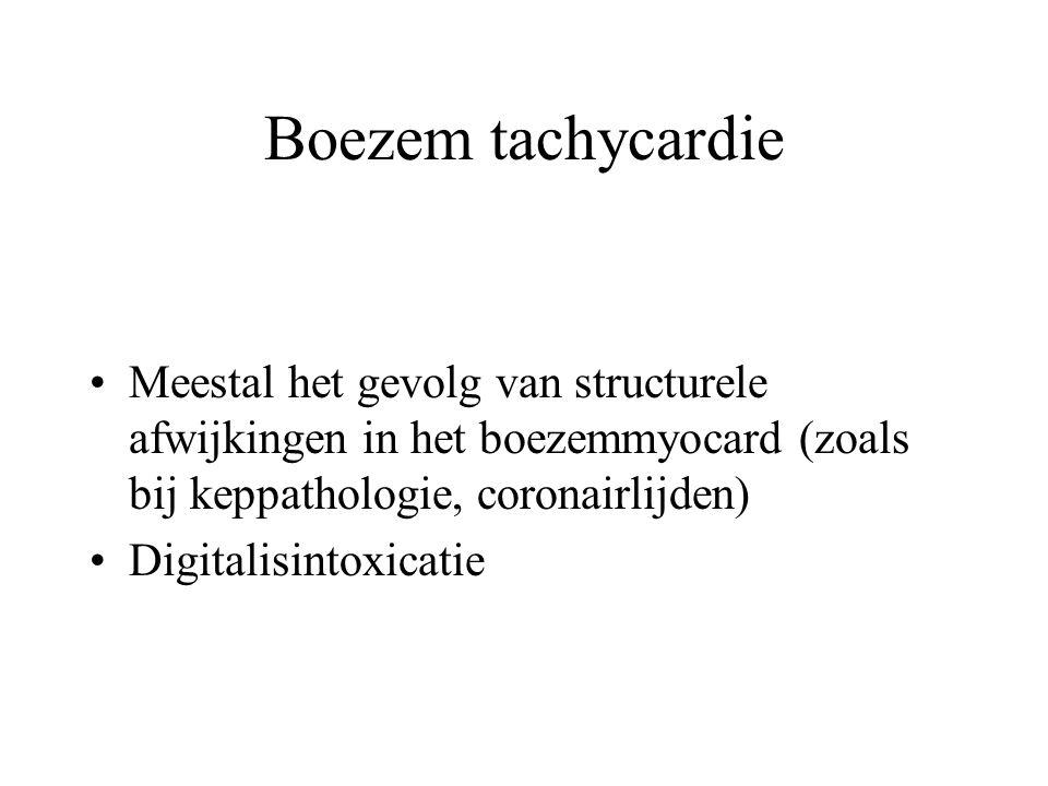Boezem tachycardie Meestal het gevolg van structurele afwijkingen in het boezemmyocard (zoals bij keppathologie, coronairlijden)
