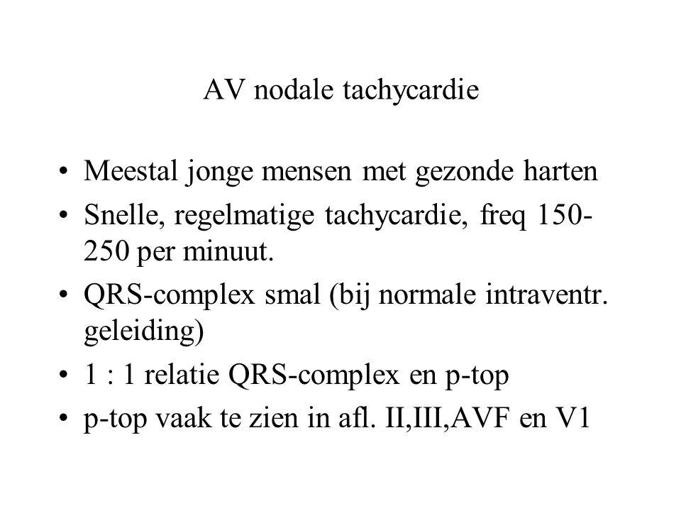 AV nodale tachycardie Meestal jonge mensen met gezonde harten. Snelle, regelmatige tachycardie, freq 150-250 per minuut.