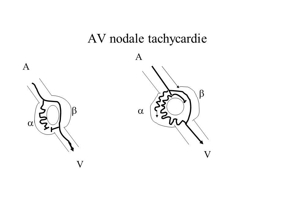 AV nodale tachycardie A A     V V