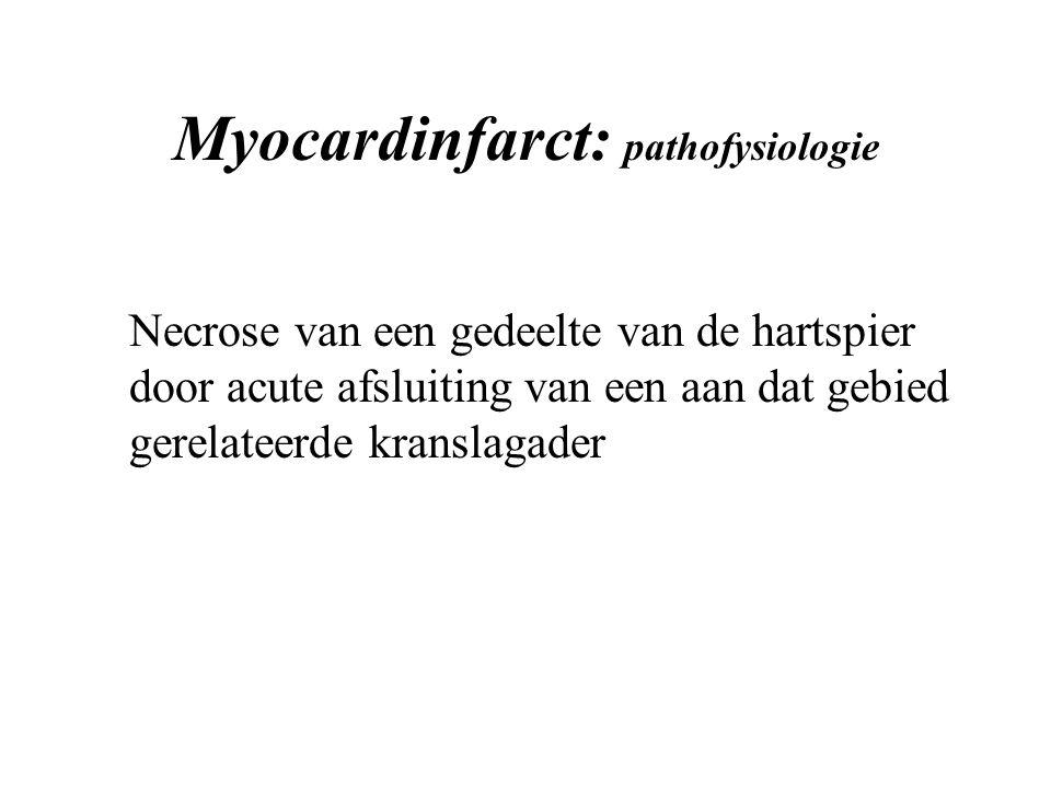 Myocardinfarct: pathofysiologie