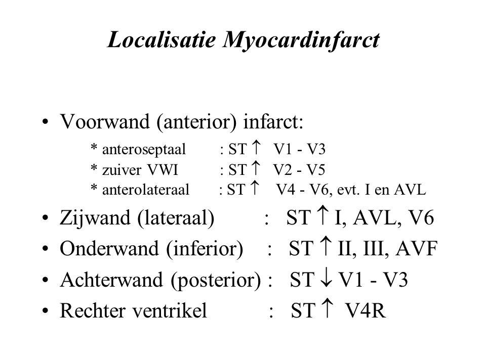 Localisatie Myocardinfarct