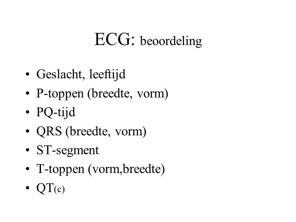 ECG: beoordeling Geslacht, leeftijd P-toppen (breedte, vorm) PQ-tijd