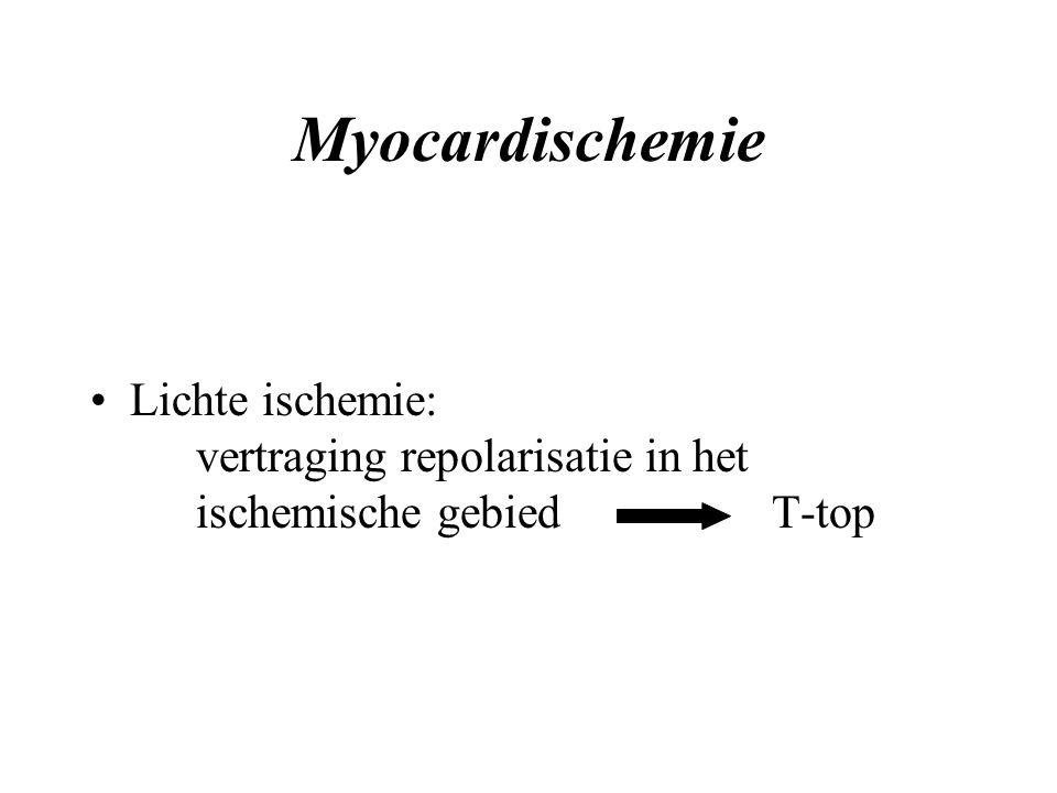Myocardischemie Lichte ischemie: vertraging repolarisatie in het ischemische gebied T-top.