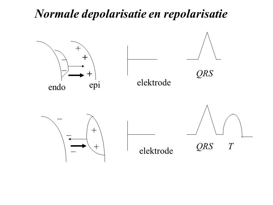 Normale depolarisatie en repolarisatie