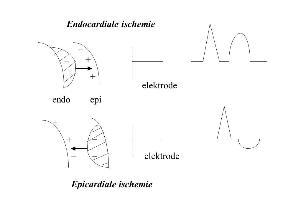 Endocardiale ischemie