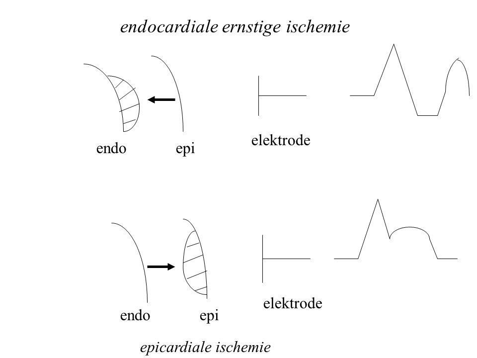endocardiale ernstige ischemie