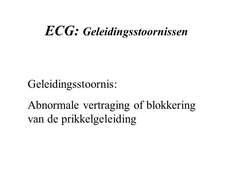 ECG: Geleidingsstoornissen