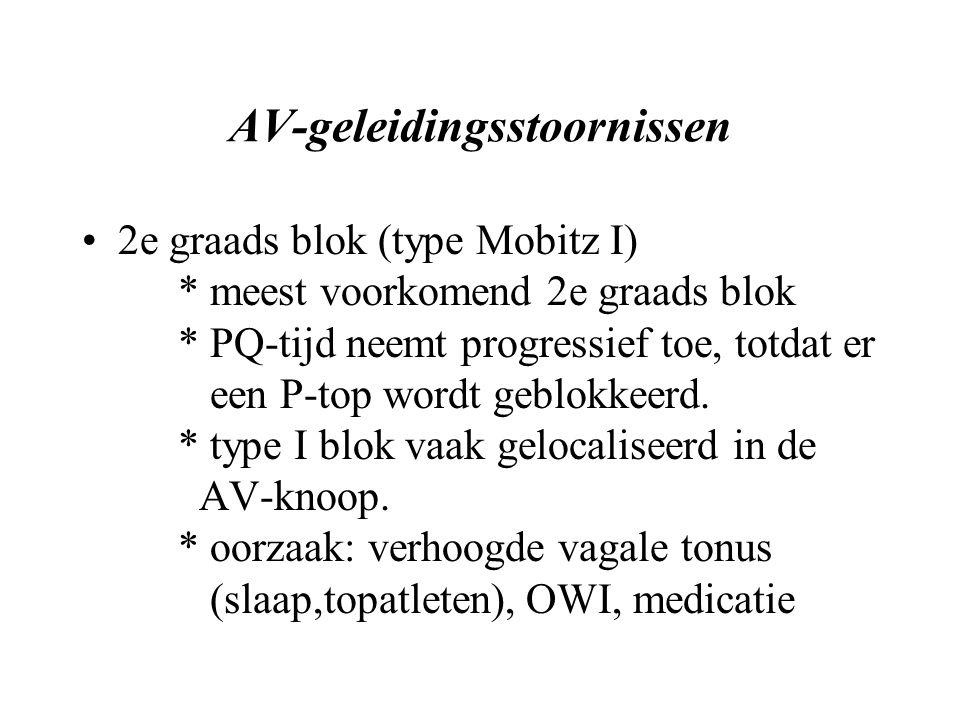 AV-geleidingsstoornissen