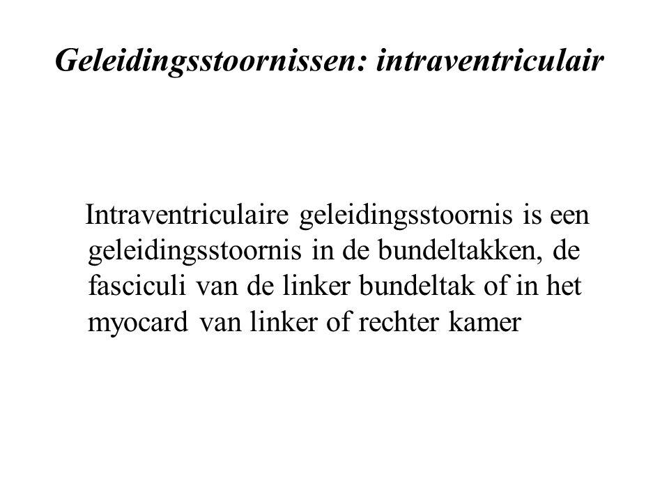 Geleidingsstoornissen: intraventriculair