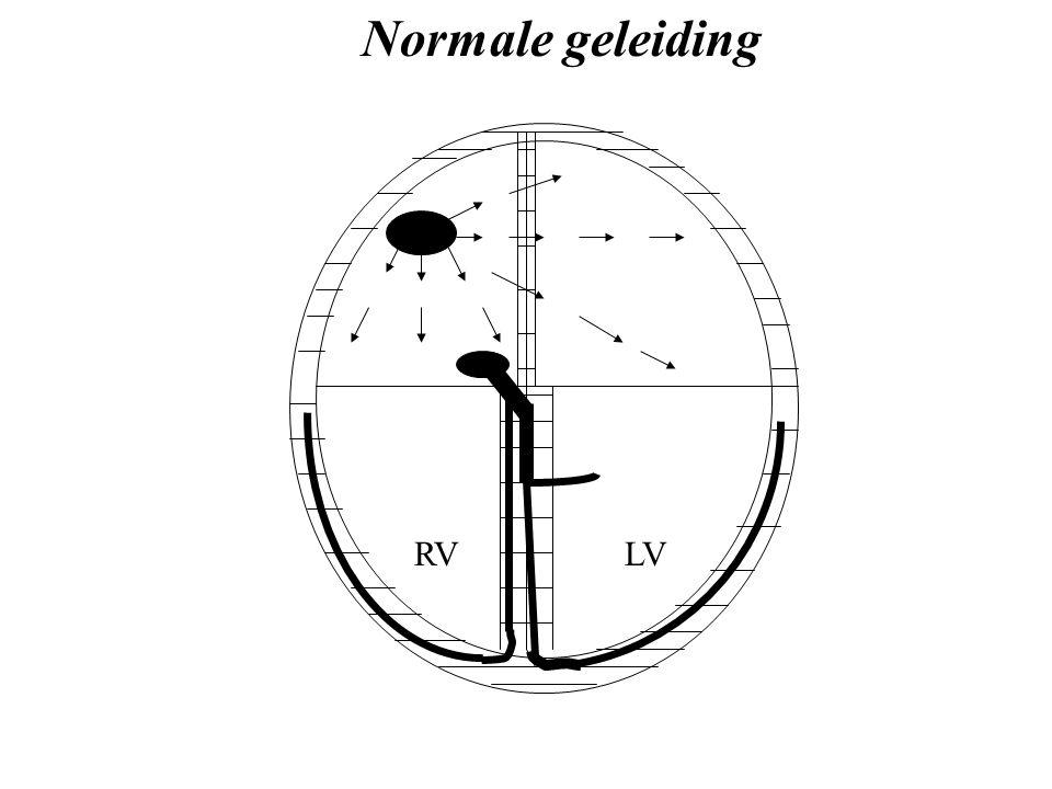 Normale geleiding RV LV