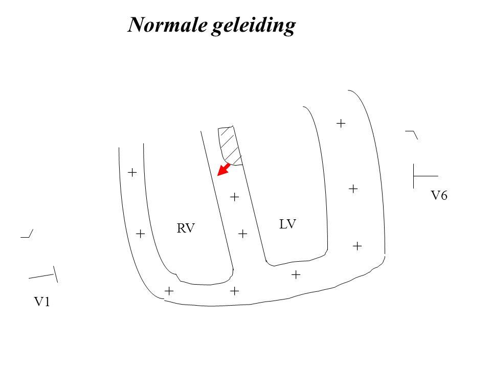 Normale geleiding + + + + V6 LV RV + + + + + + V1