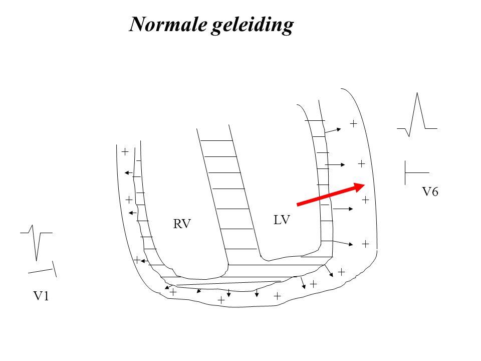 Normale geleiding + + + V6 + + LV RV + + + + + V1 + +
