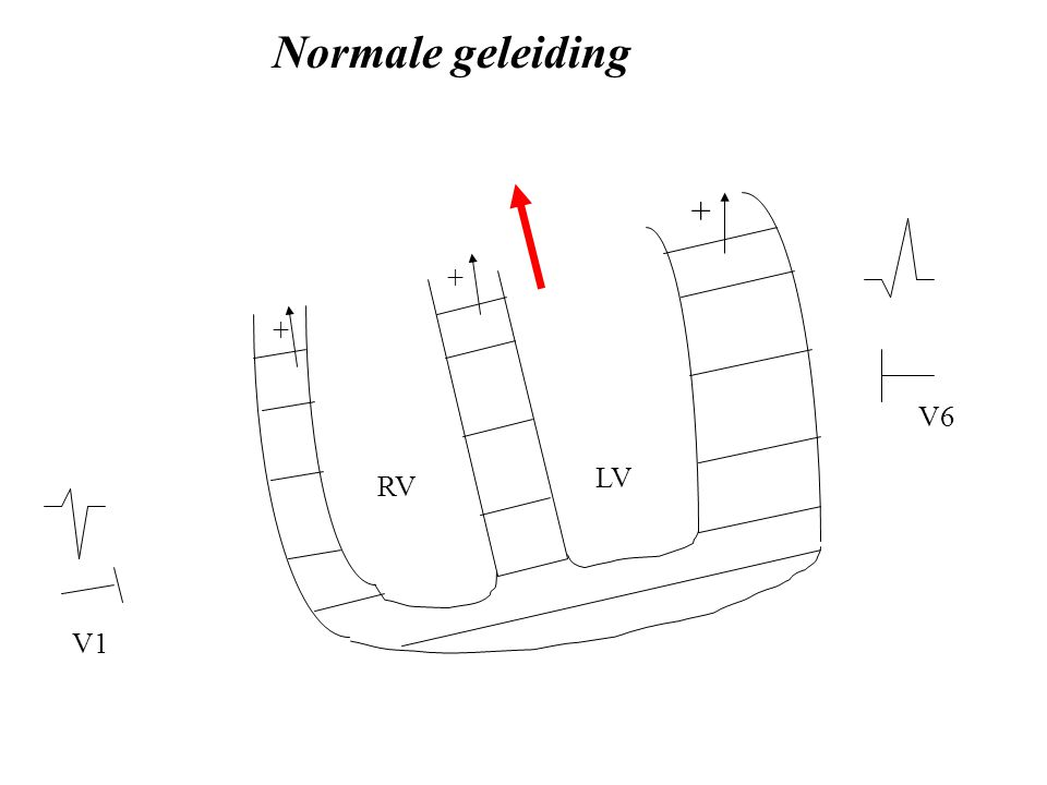 Normale geleiding + + + V6 LV RV V1