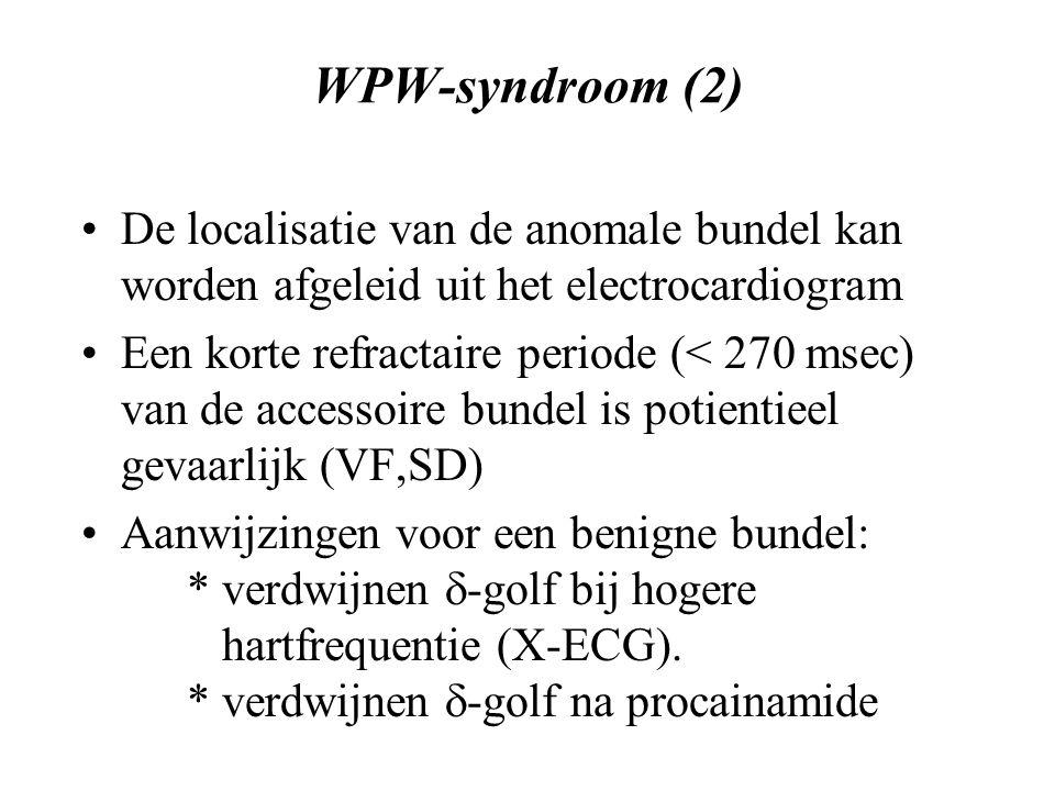 WPW-syndroom (2) De localisatie van de anomale bundel kan worden afgeleid uit het electrocardiogram.