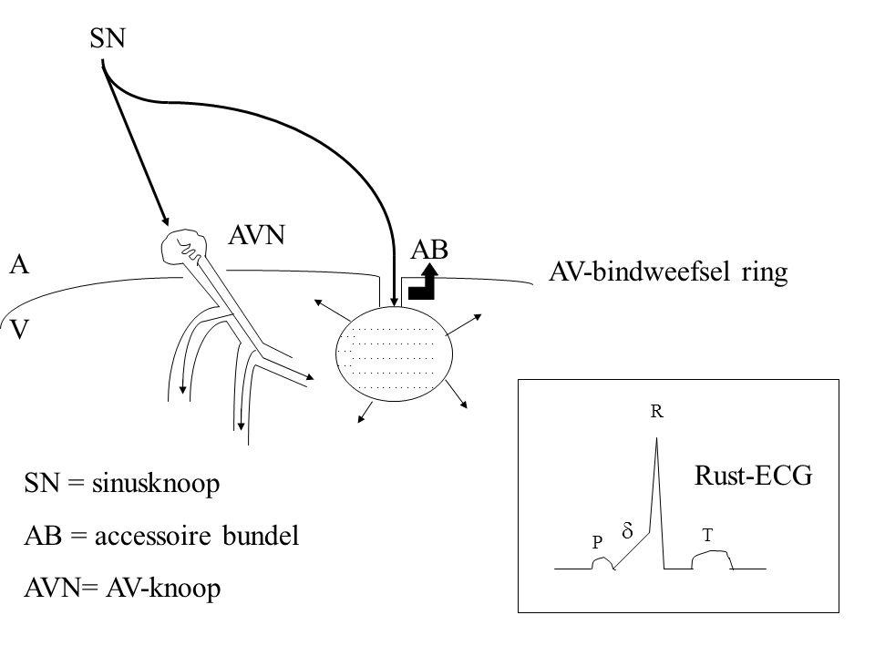 SN AVN AB A AV-bindweefsel ring V Rust-ECG SN = sinusknoop