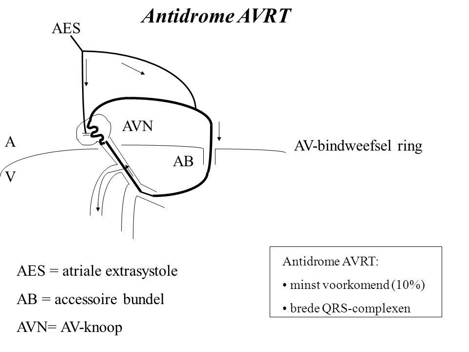 Antidrome AVRT AES AVN A AV-bindweefsel ring AB V