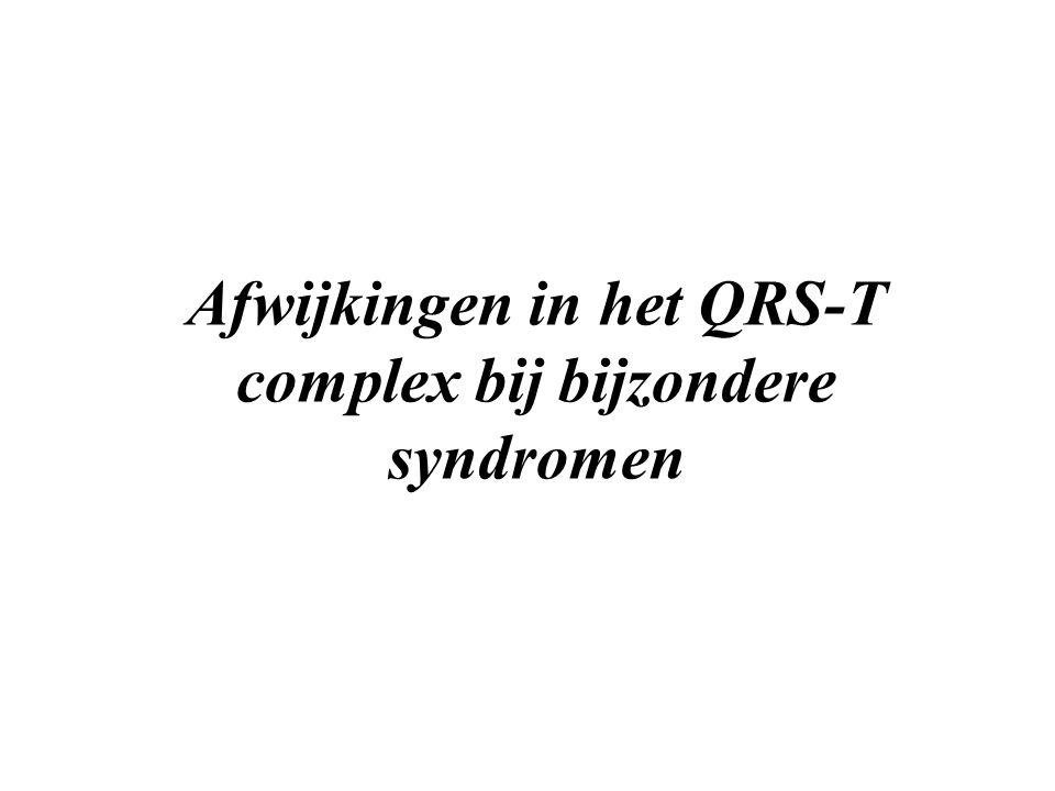 Afwijkingen in het QRS-T complex bij bijzondere syndromen