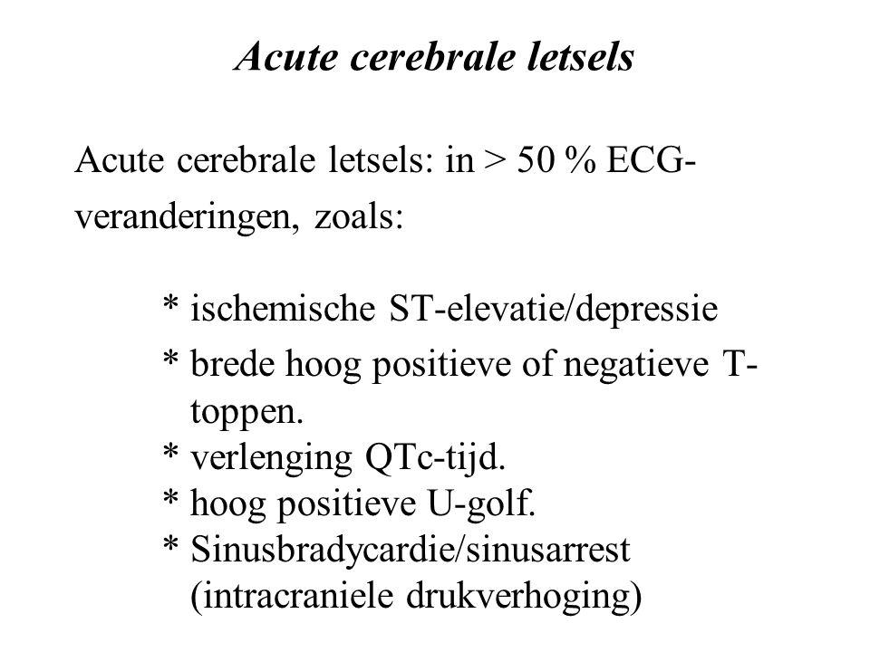 Acute cerebrale letsels