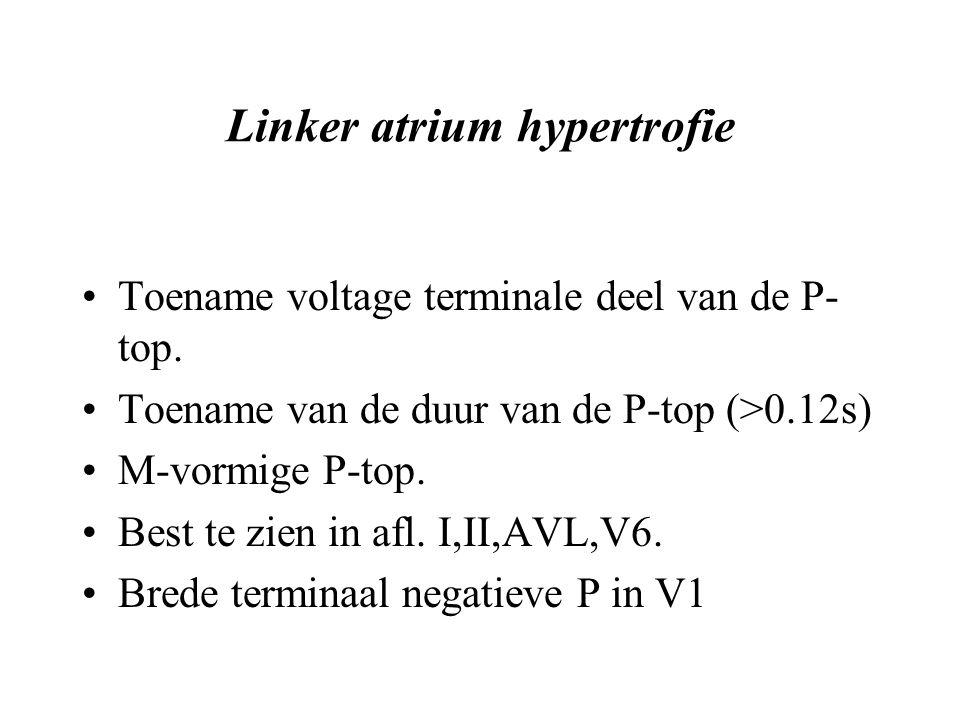 Linker atrium hypertrofie