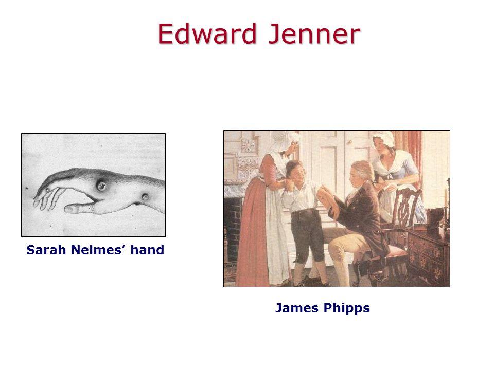 Edward Jenner Sarah Nelmes' hand James Phipps