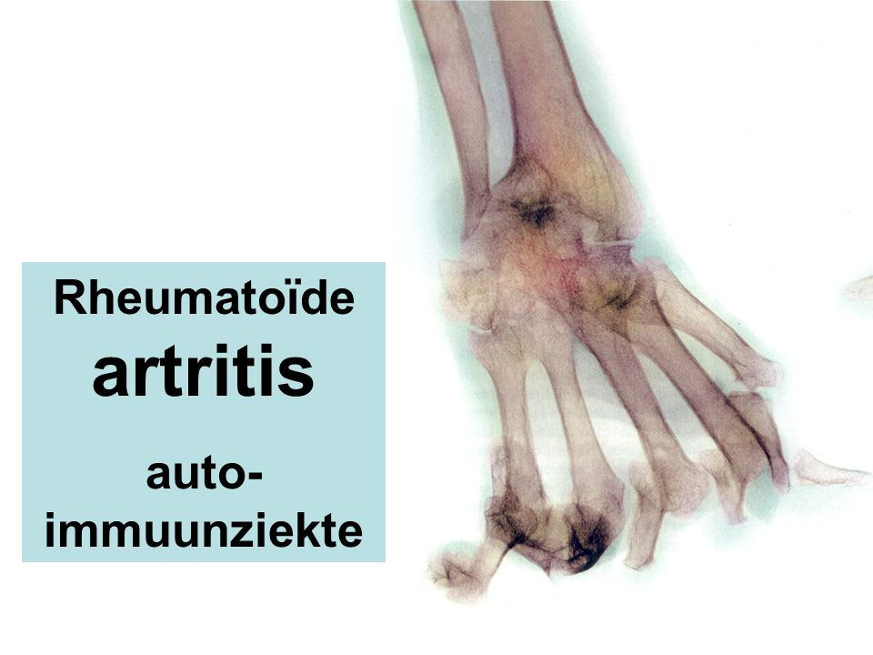 Rheumatoïde artritis auto-immuunziekte