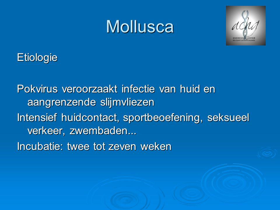 Mollusca Etiologie. Pokvirus veroorzaakt infectie van huid en aangrenzende slijmvliezen.