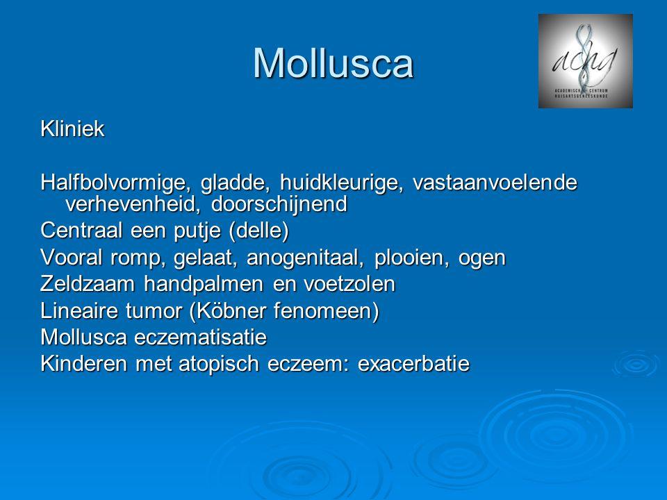 Mollusca Kliniek. Halfbolvormige, gladde, huidkleurige, vastaanvoelende verhevenheid, doorschijnend.