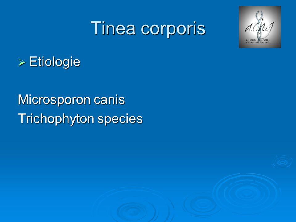 Tinea corporis Etiologie Microsporon canis Trichophyton species