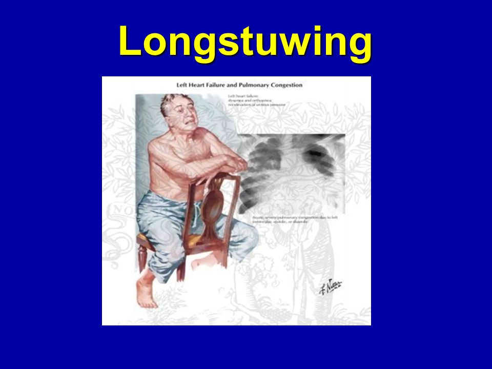 Longstuwing