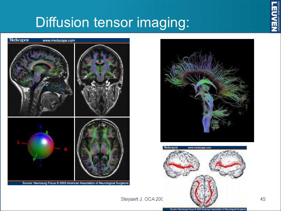 Diffusion tensor imaging: