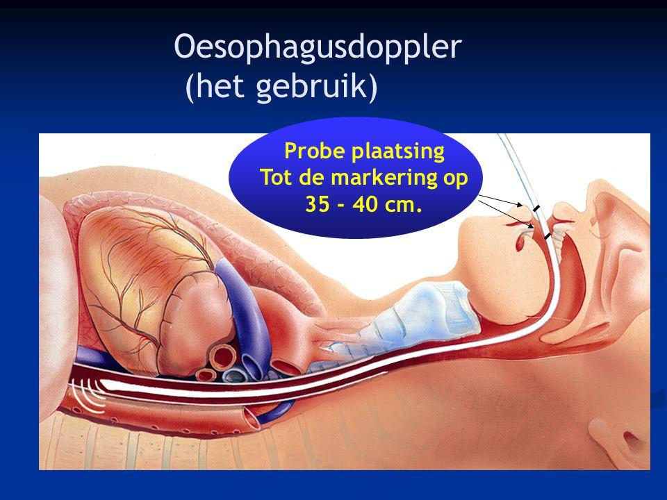 Oesophagusdoppler (het gebruik)