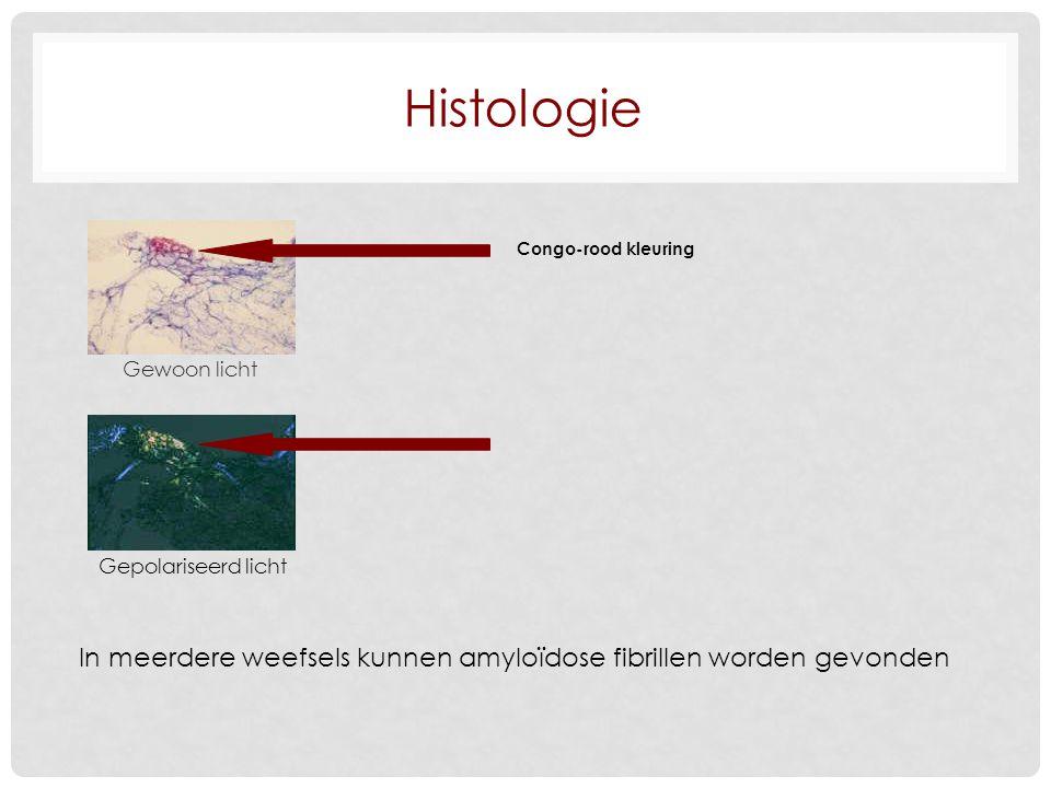 Histologie Congo-rood kleuring. Gewoon licht. Gepolariseerd licht.