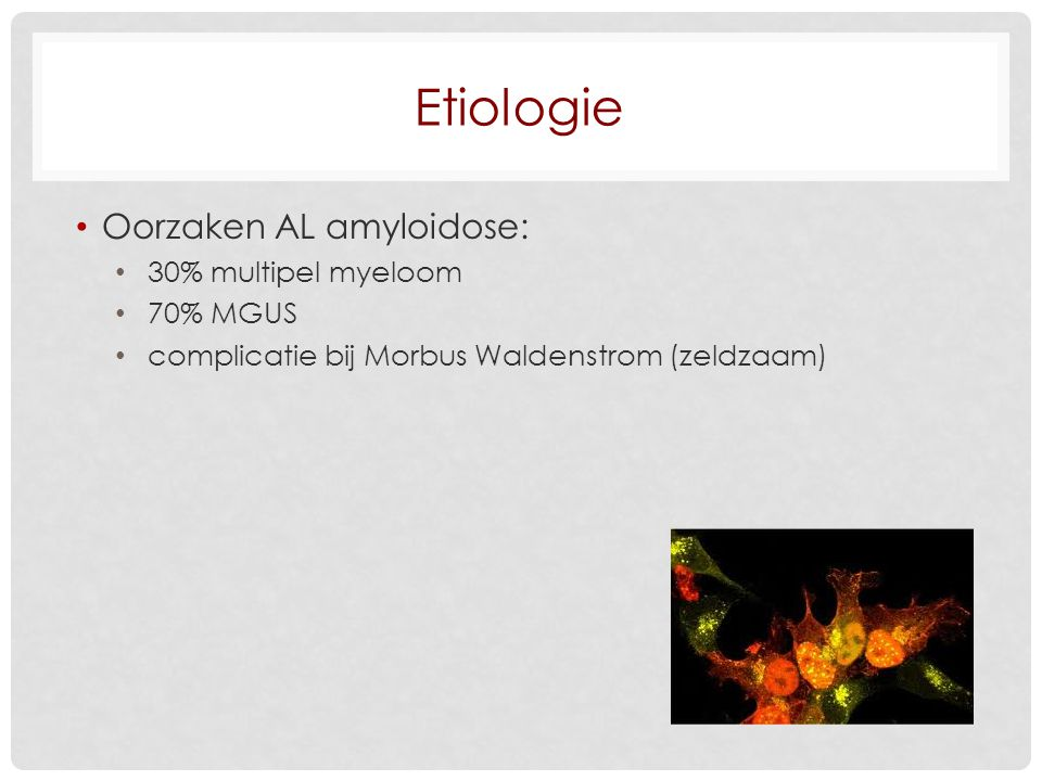 Etiologie Oorzaken AL amyloidose: 30% multipel myeloom 70% MGUS