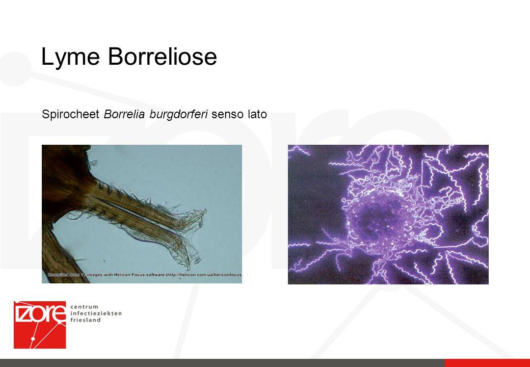 Lyme Borreliose Spirocheet Borrelia burgdorferi senso lato