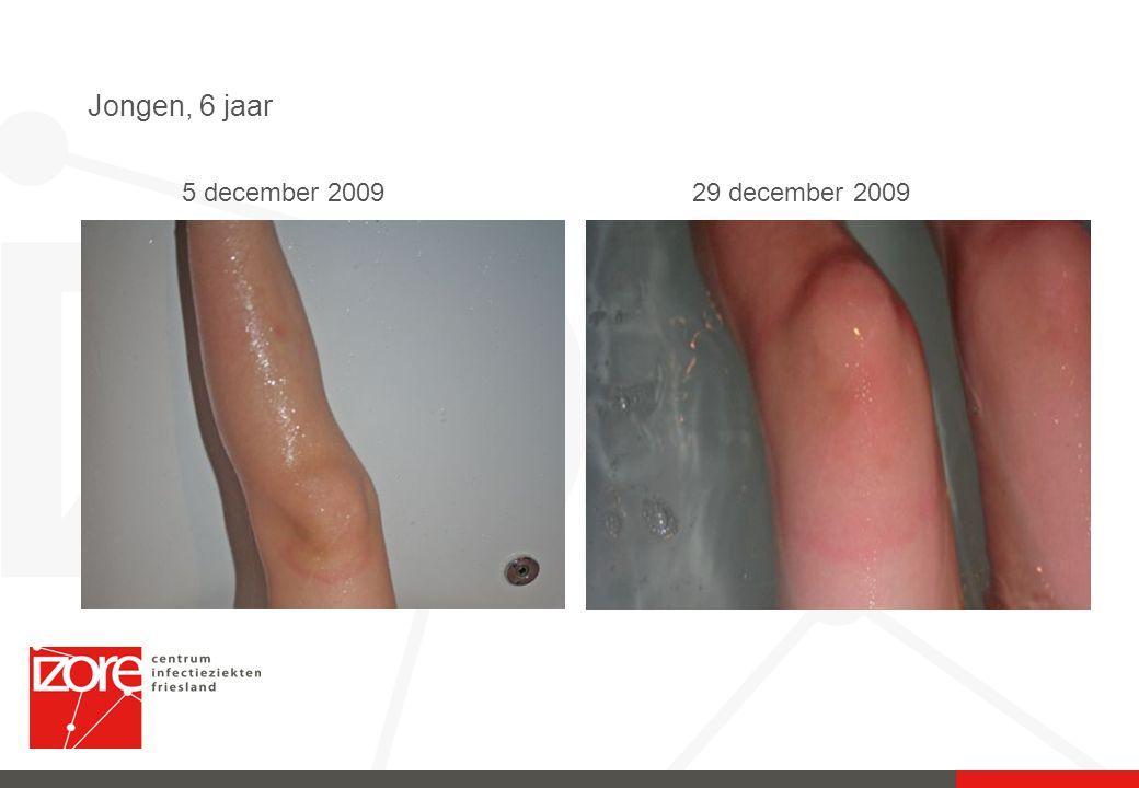 Jongen, 6 jaar 5 december 2009 29 december 2009