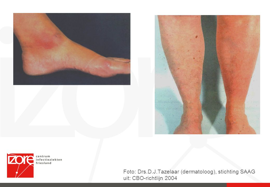 Foto: Drs.D.J.Tazelaar (dermatoloog), stichting SAAG uit: CBO-richtlijn 2004