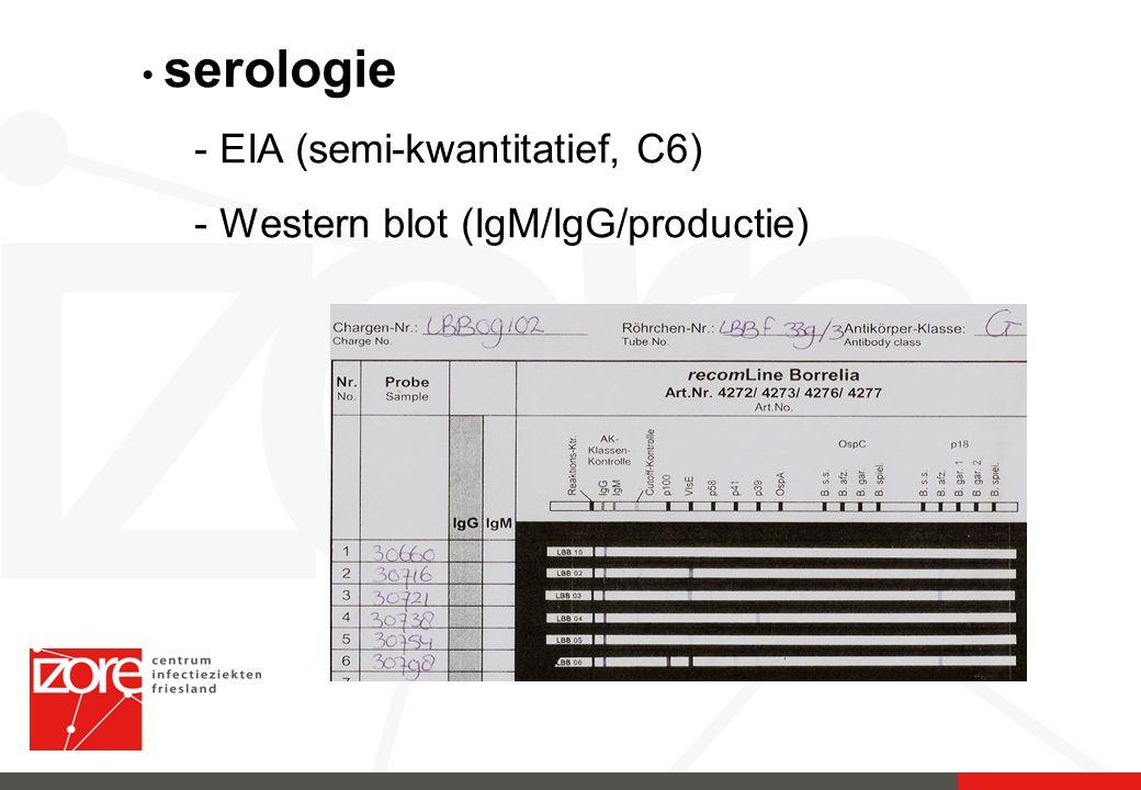 EIA (semi-kwantitatief, C6) Western blot (IgM/IgG/productie)