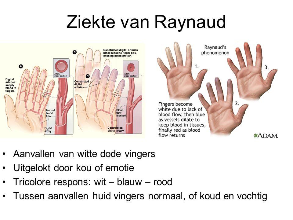 Ziekte van Raynaud Aanvallen van witte dode vingers