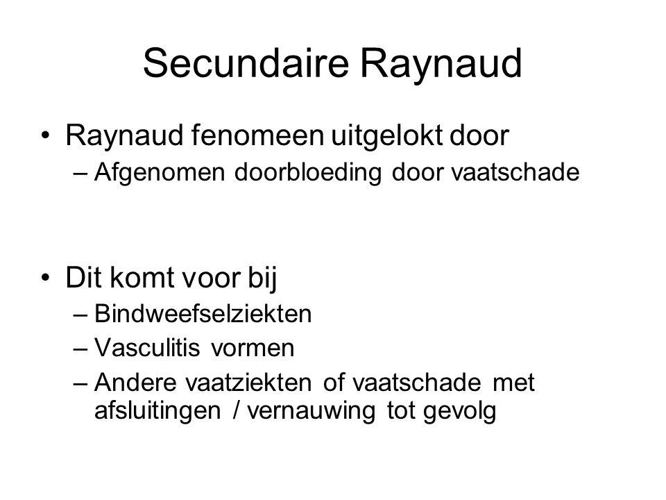 Secundaire Raynaud Raynaud fenomeen uitgelokt door Dit komt voor bij