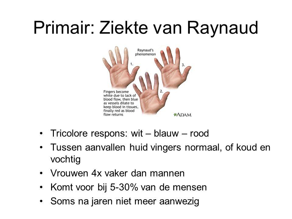 Primair: Ziekte van Raynaud