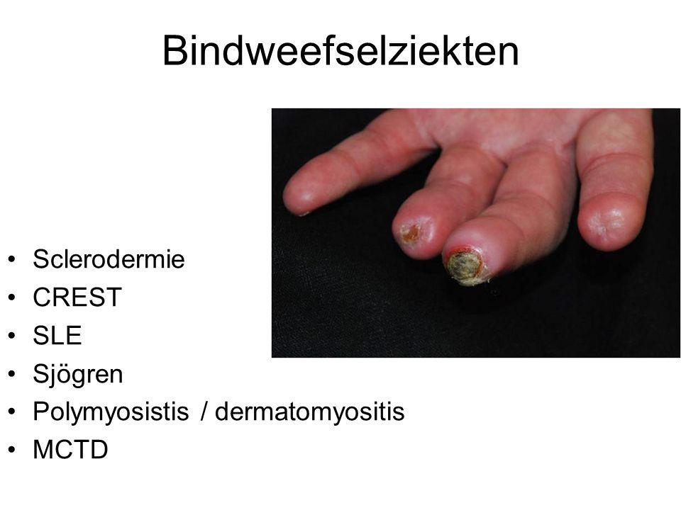 Bindweefselziekten Sclerodermie CREST SLE Sjögren