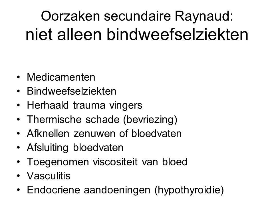 Oorzaken secundaire Raynaud: niet alleen bindweefselziekten