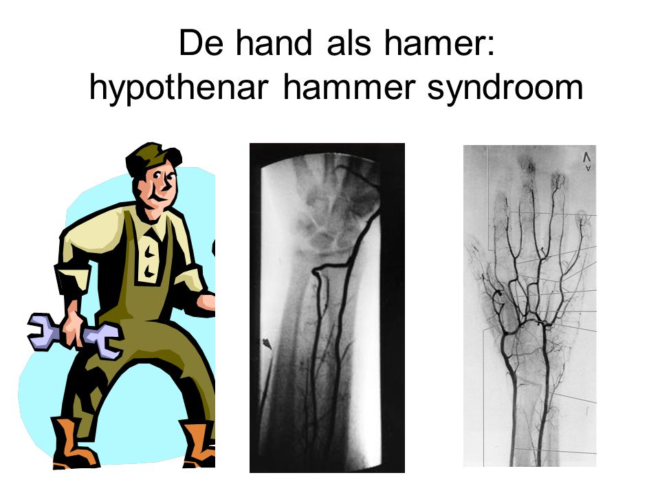 De hand als hamer: hypothenar hammer syndroom
