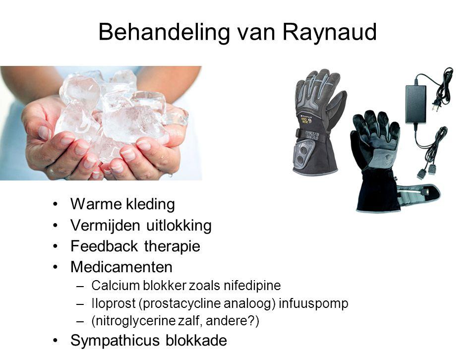 Behandeling van Raynaud