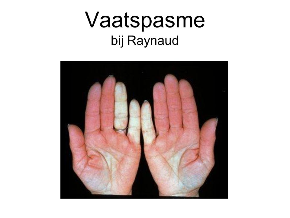 Vaatspasme bij Raynaud