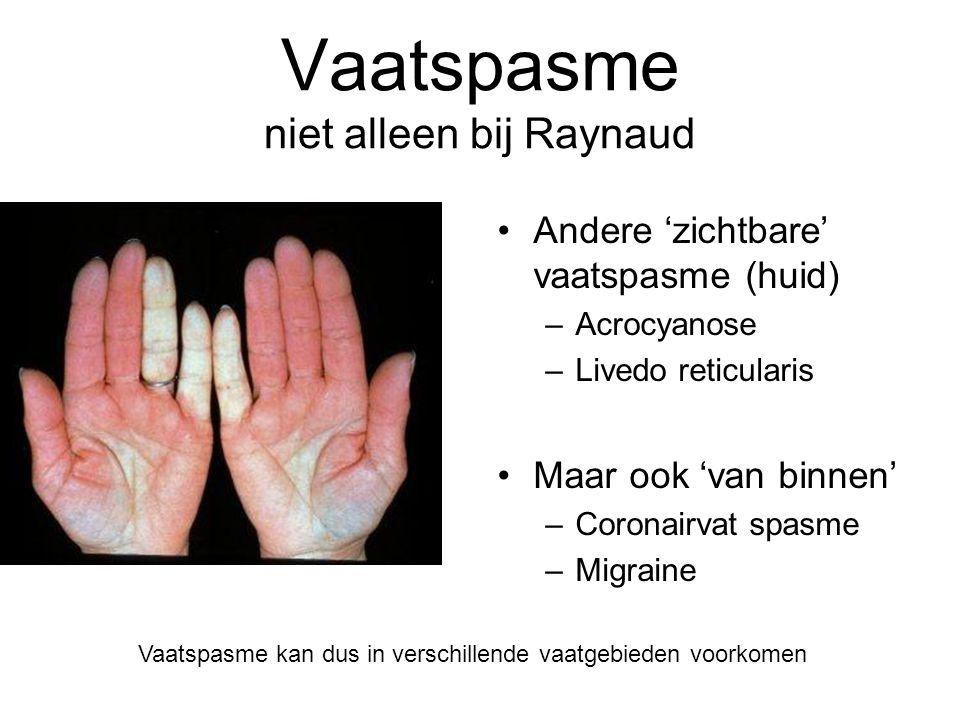 Vaatspasme niet alleen bij Raynaud